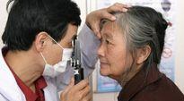 Bệnh Glôcôm có thể gây mù lòa vĩnh viễn