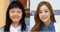 Sao Hàn tự tin cười tươi nhờ sửa răng