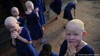 Câu chuyện đẫm nước mắt về nạn săn người bạch tạng ở châu Phi