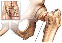 Điều trị loãng xương ở người cao tuổi