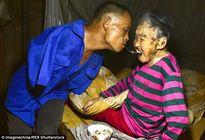Người con tật nguyền dùng miệng bón cơm cho mẹ gây xúc động mạnh