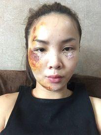 Yến Trang đăng ảnh gương mặt trầy xước sau tai