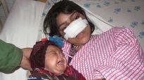 Nỗi đau của người vợ trẻ bị chồng vũ phu cắt mũi