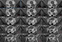 Người phụ nữ bị nhiều khối u xơ tử cung nhất thế giới