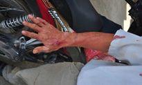 Bắt khẩn cấp đối tượng dùng dao đâm xe ôm, cướp xe