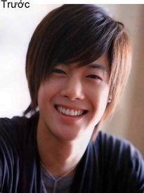 7 ca sĩ danh tiếng nhất xứ Hàn thừa nhận dao kéo