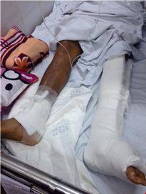 Trớ trêu bệnh nhân lại là người đầu tiên phát hiện mổ nhầm chân