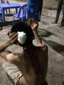 Hà Nội: San đất bán trà đá bị nhóm côn đồ đánh toạc đầu