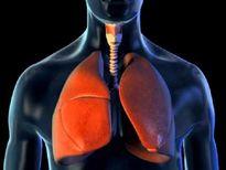"""""""Tăng áp động mạch phổi"""" cái chết được báo trước"""
