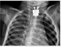 Cẩn thận với những dị vật khiến trẻ bị tổn thương phổi nếu nuốt phải