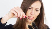 Cảnh báo bệnh nguy hiểm từ chứng rụng tóc quá nhiều