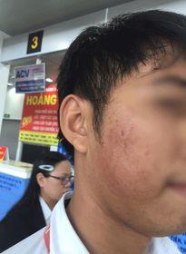 Bạn gái trễ giờ lên máy bay, nam thanh niên xông vào đánh nhân viên hàng không