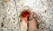 Chuột khổng lồ sắp chết vẫn cắn chân cô gái trẻ trả thù
