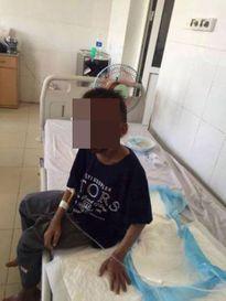 Ngã vào bếp, cậu bé 14 tuổi cháy mặt có nguy cơ hỏng 2 mắt