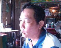 Bệnh nhân tố bác sĩ phòng khám nhổ răng dẫn đến mù mắt