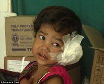 Bác sỹ giật mình phát hiện 80 con giòi làm tổ trong tai bé gái