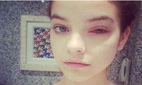 Người mẫu xinh đẹp suýt bị mù vì cọ trang điểm bẩn