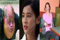 Bi kịch dàn sao 'Tuyệt đỉnh Kungfu': Người bệnh tật, kẻ không có nhà để ở