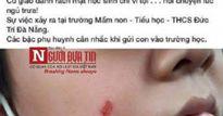 Đình chỉ 1 tháng, phạt 5 triệu cô giáo làm trầy má HS tại Đà Nẵng