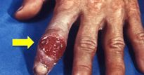 3 bệnh tình dục hiếm gặp nhưng để lại tác hại khủng khiếp nếu mắc