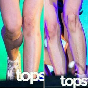 Tiffany lộ chân đầy vết hằn, bầm tím do đi giầy khủng
