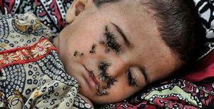 Sự thật khủng khiếp sau bức ảnh bé 2 tuổi bị ruồi bu kín mặt