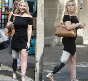 Cô gái cụt chân siêu sexy với nội y