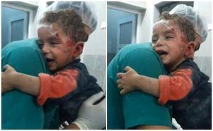 Bé trai Syria hoảng sợ ôm chặt y tá sau cuộc không kích