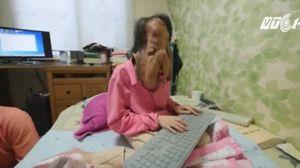 Người phụ nữ Hàn Quốc có gương mặt chảy xệ khủng khiếp vì bệnh lạ