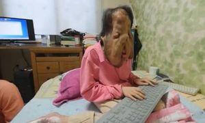 Bệnh lạ biến người phụ nữ Hàn Quốc thành quái vật