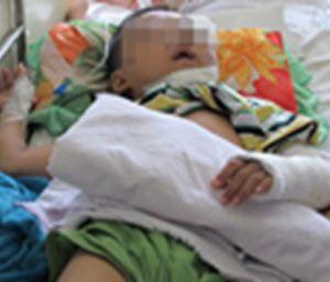 Bé trai 3 tuổi rơi từ tầng 2, bị đâm xuyên ngực