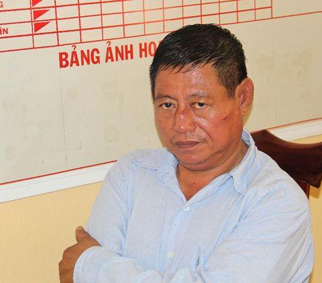 Thong tin moi nhat vu trung ta Campuchia ban 2 nguoi Viet - Anh 1