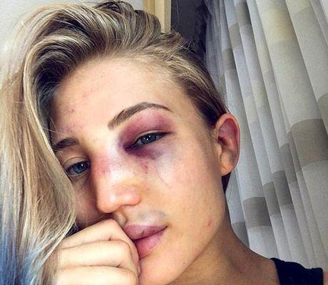 Hoa khoi MMA bi danh bam dap nhieu nguoi thuong - Anh 2