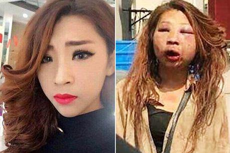 Cô gái trẻ mặt biến dạng vì bị vợ nhân tình đánh ghen
