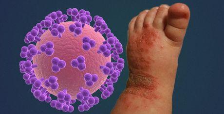 14 thang tuoi bi nhiem virus Herpes ca doi do nu hon tu nguoi lon - Anh 1