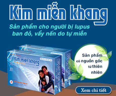 Benh vay nen lam tang nguy co mac benh gan - Anh 3