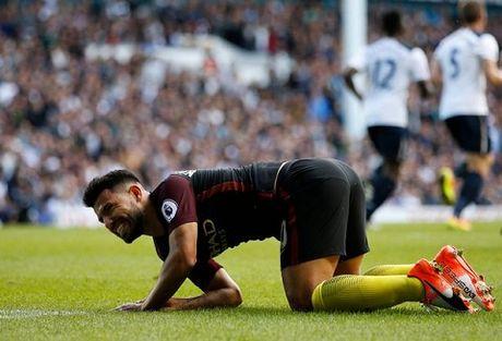Guardiola: 'Man City khong hoan hao. Chung toi yeu hon Tottenham nhieu' - Anh 4