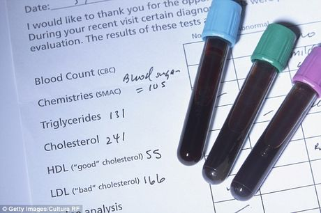 Nhung dieu nen biet de khong lo lang qua ve cholesterol - Anh 1