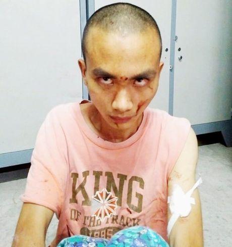 He lo nguyen nhan vu truy sat kinh hoang trong chua Buu Quang - Anh 1