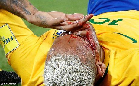 Can canh Neymar do mau - Anh 1