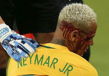 Can canh Neymar do mau - Anh 7