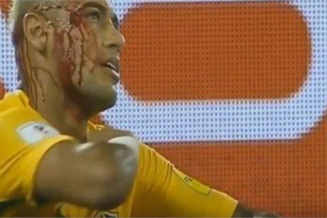 Neymar chay mau dam dia sau cu giat cui cho cua hau ve Bolivia - Anh 1