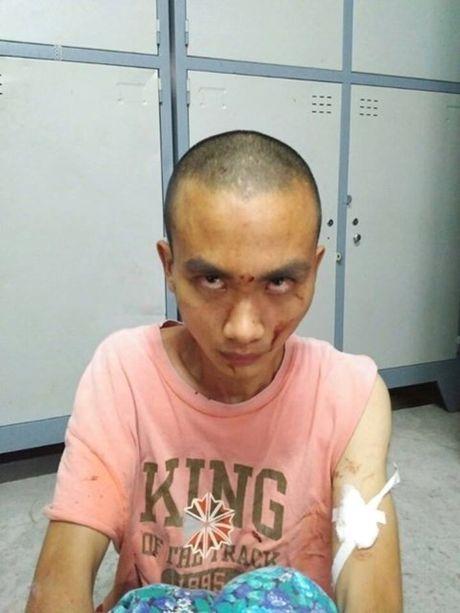 Nghi can gay an mang o chua Buu Quang khong phai tu si Phat giao - Anh 1