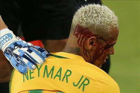 """""""Do te"""" cho Neymar an cui cho: """"Cau ta xung dang bi nhu vay!"""" - Anh 1"""