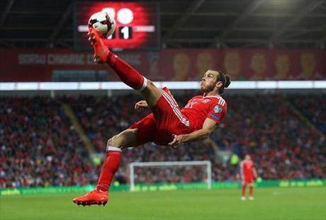 Tan chay voi mai toc bong benh cua Gareth Bale - Anh 2