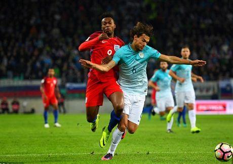'Ganh nang' Rooney du bi, Tam Su suyt chet truoc Slovenia - Anh 2