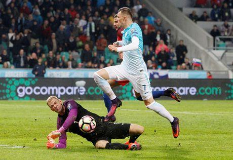 Joe Hart thua nhan tuyen Anh be tac truoc Slovenia - Anh 2