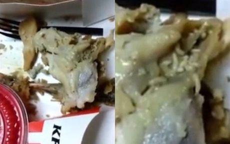 My: Rung minh clip gioi bo luc nhuc trong mieng ga KFC khien be trai nhap vien - Anh 1
