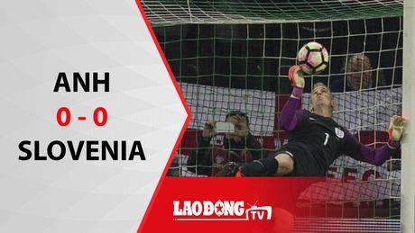 Anh hoa that vong khong ban thang truoc Slovenia - Anh 1