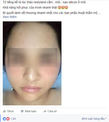 Loi khuyen gui chi em cua co gai Ha Noi vua tham my xong lai chiu dau de go het don cam, thao mui, nao silicon o moi - Anh 3